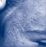 close up of chloracne on a person's face