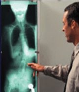 Doctor pointing to x-ray of spine